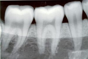 dental amalgam waste