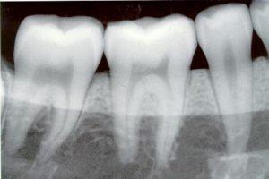 Dental Medical Waste